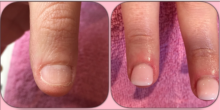 Nail Art Ongles Rongs French Manucure